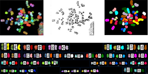 Left image: hES chromosomes after the simultaneous hybridization of 24 combinatiorially labeled chromosome painting probes. Middle image: hES chromosome were stained with dapi, which used to compare within chromosomes and banding. Right image: Presentation of spectrabased classification colors. Bottom image: Karyotype of the SKY analysis from a normal female hES cell.
