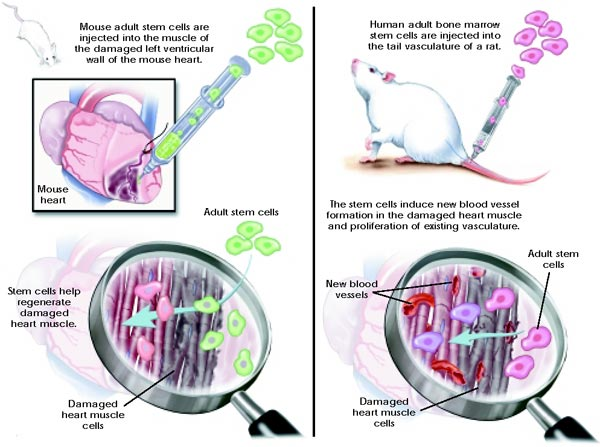 Graphic depicting heart muscle repair with adult stem cells