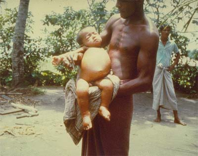 Photo of an man holding a sick child in his arms
