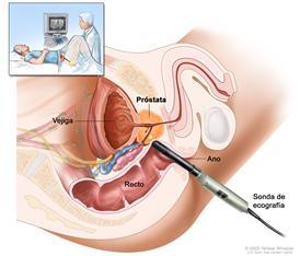 Ecografía transrectal; el dibujo muestra una vista lateral de la anatomía del sistema reproductor y urinario masculino que incluye la próstata, el ano, el recto y la vejiga; también muestra la inserción de una sonda de ecografía en el recto para examinar la próstata. El recuadro muestra a un paciente acostado boca arriba en una mesa, sometido a un procedimiento de ecografía transrectal.