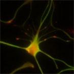 cassiani neuron