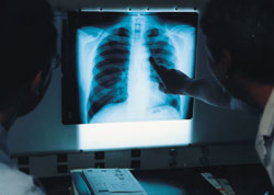 Chest X-Rays are the most common method of detecting asbestos-related disorders