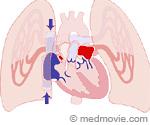 Blood Flow Illustration