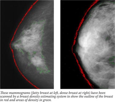 These mammograms (fatty breast at left, dense breast at right) have been scanned by a breast density estimating system to show the outline of the breast in red and areas of density in green.