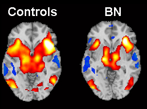 fMRI data showing self-regulatory brain activity in healthy controls and women with bulimia