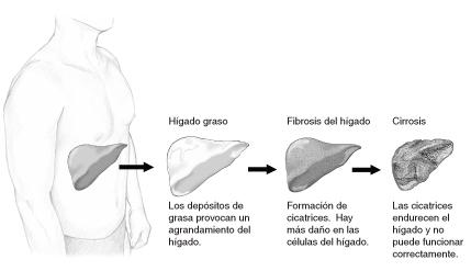 Imagen de las etapas del daño al hígado incluyendo: hígado normal, hígado graso (donde los depósitos de grasa causan el agrandamiento del hígado), fibrosis del hígado (cuando tejido cicatricial se forma y daño adicional al hígado ocurre), y cirrosis (cuando tejido cicatricial endurece al hígado y no lo permite funcionar apropiadamente).