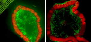 An activatable probe (right) shows a metastatic ovarian tumor with minimal background signals. The control 'always on' probe (left) lacks clear delineation of cancer foci due to high background signals. (Image courtesy of Dr. Hisataka Kobayashi).