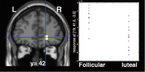 fMRI scan data showing orbitofrontal cortex and chart showing different levels of reward circuit activity, depending on menstrual cycle phase