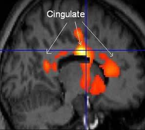 Image of PET/MRI Cingulate Cortex