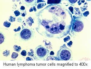 Human lymphoma tumor cells magnified to 400x
