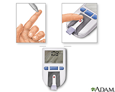 Illustration of a blood test using a blood glucose monitor