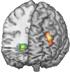 MRI of brain highlighting differential brain activity